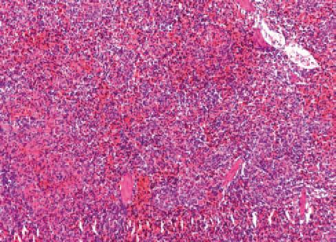 Depleción linfoide en bazo